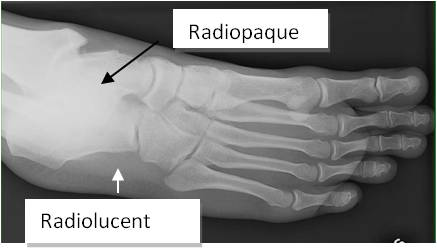 Foot Example